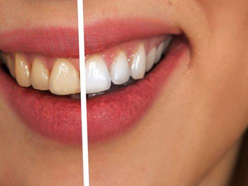 Nowoczesna protetyka dentystyczna – światowe trendy
