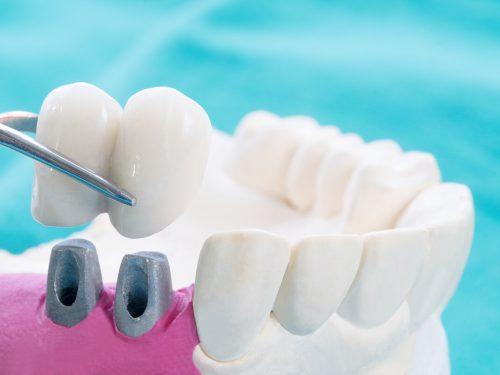 Czym jest pełnoceramiczna korona zęba i komu pomaga