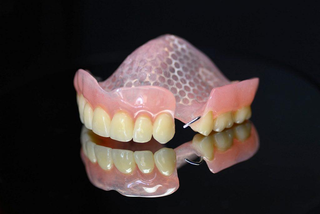 Proteza akrylowa z siatką i klamrami