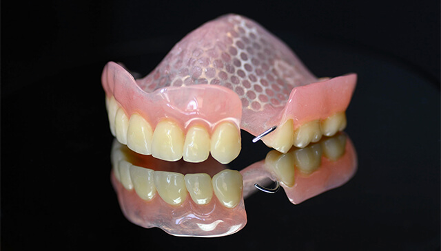 Proteza akrylowa z siatką i klamrami - miniatura