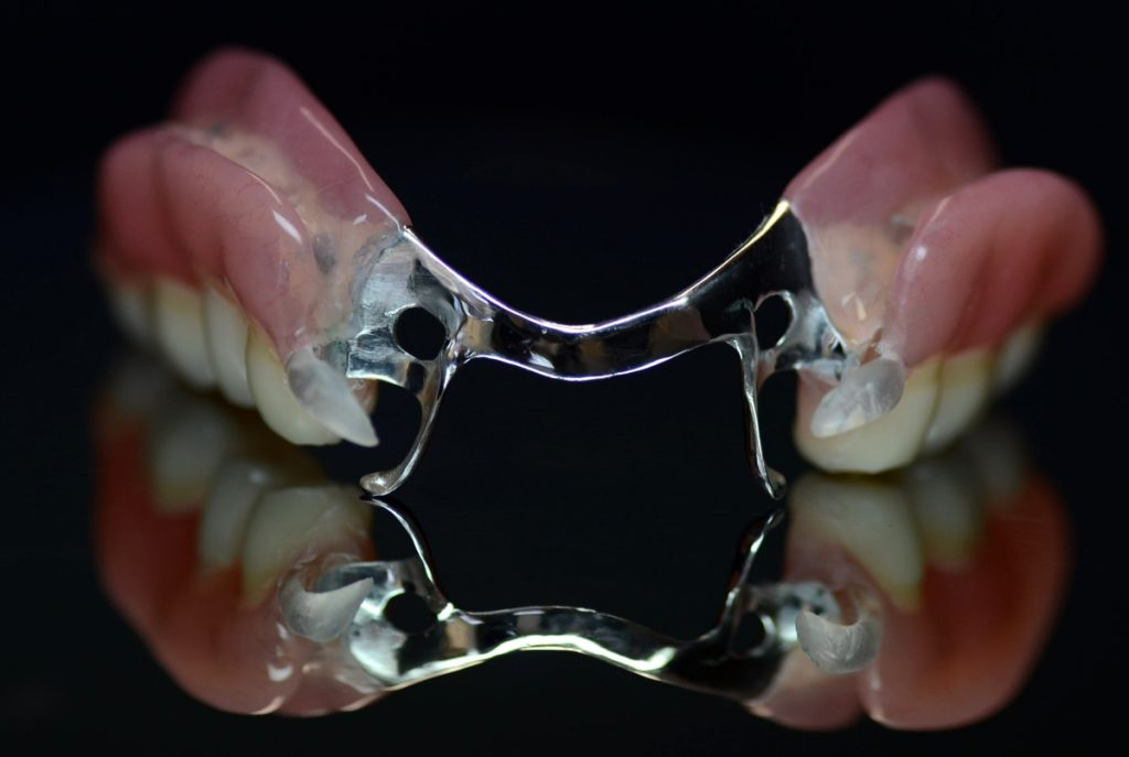 Proteza szkieletowa z klamrami akronowymi