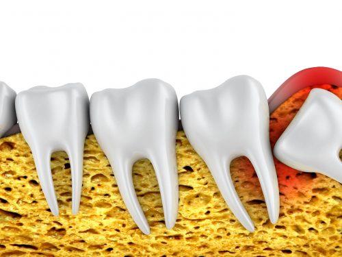 Czy warto dbać o zęby mądrości?