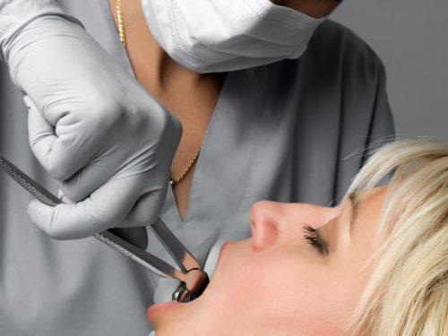 Jak zadbać o dziąsła po ekstrakcji zęba