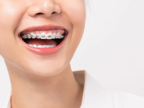 Myślisz o aparacie ortodontycznym? Oto co warto wiedzieć.