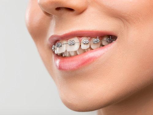 Czy wiesz, jak dbać o zęby, nosząc aparat ortodontyczny?