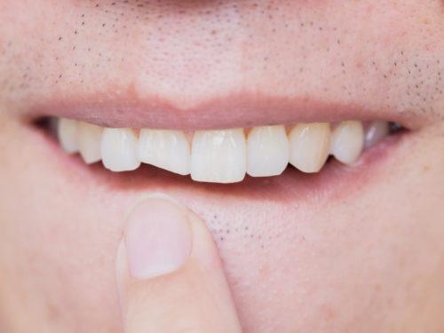 Złamany lub ukruszony ząb przedni- jak można go naprawić?