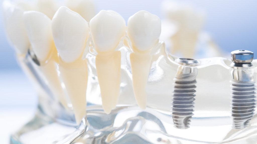 Utrata jedynki - implant, czy proteza zębowa?