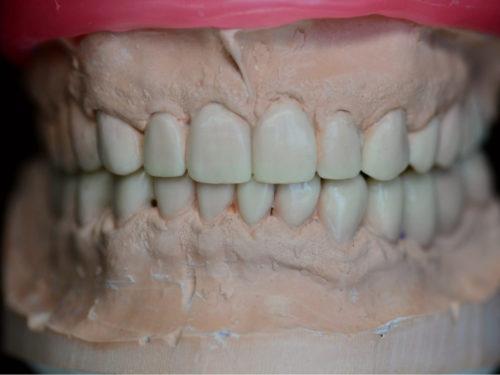 Wykonanie protezy zębowej krok po kroku – jak to wygląda w praktyce