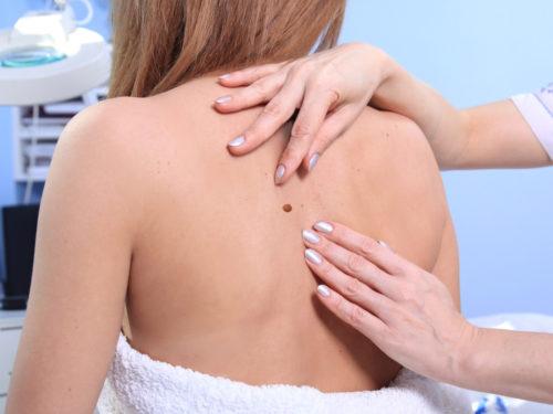 Groźne zmiany na skórze – kiedy powinieneś zgłosić się do dermatologa