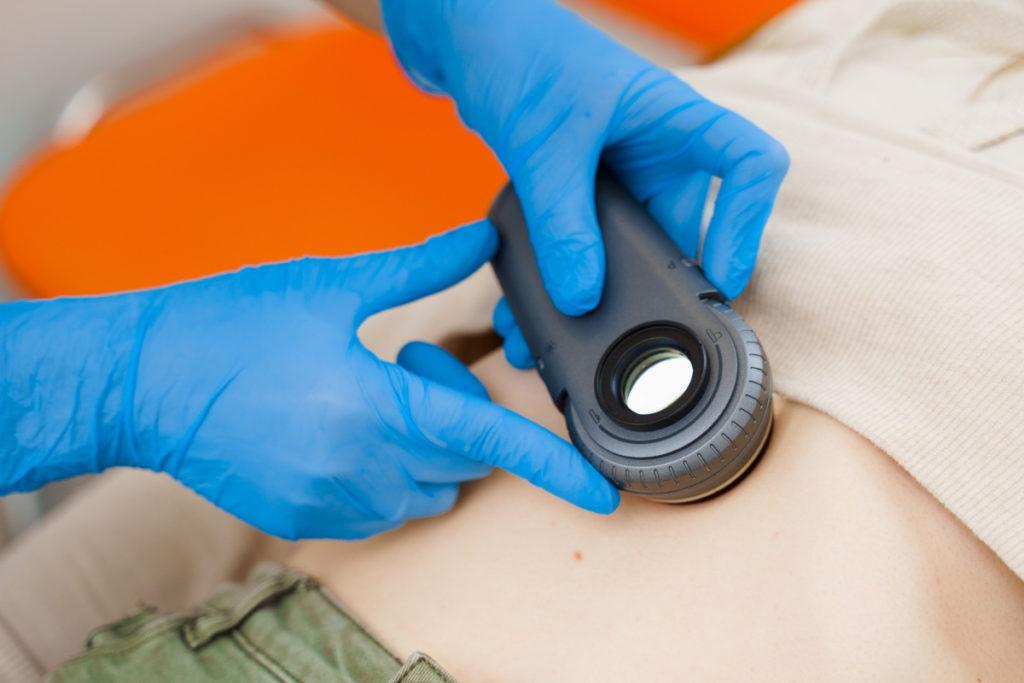 Badanie dermatoskopem. Groźne zmiany na skórze - kiedy powinieneś zgłosić się do dermatologa